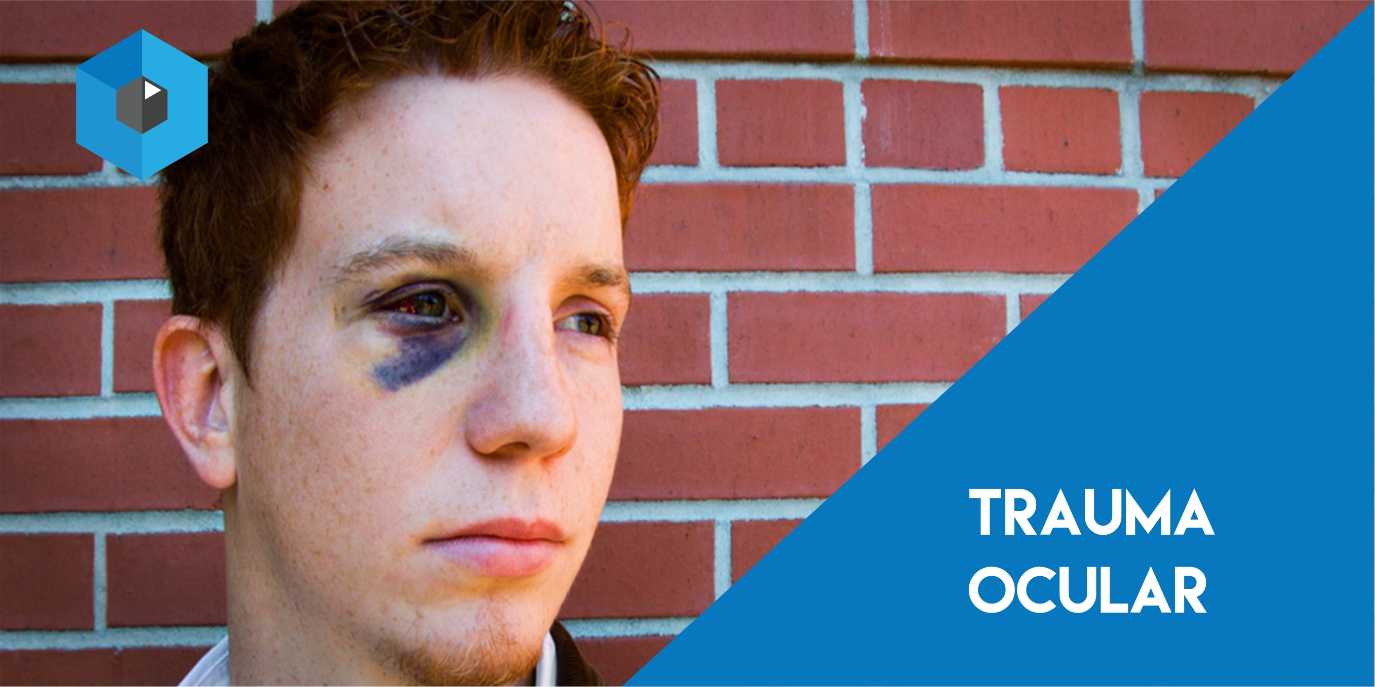 Trauma na região dos olhos pode causar perda da visão