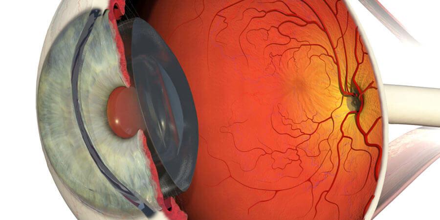 cirurgia da retina em curitiba