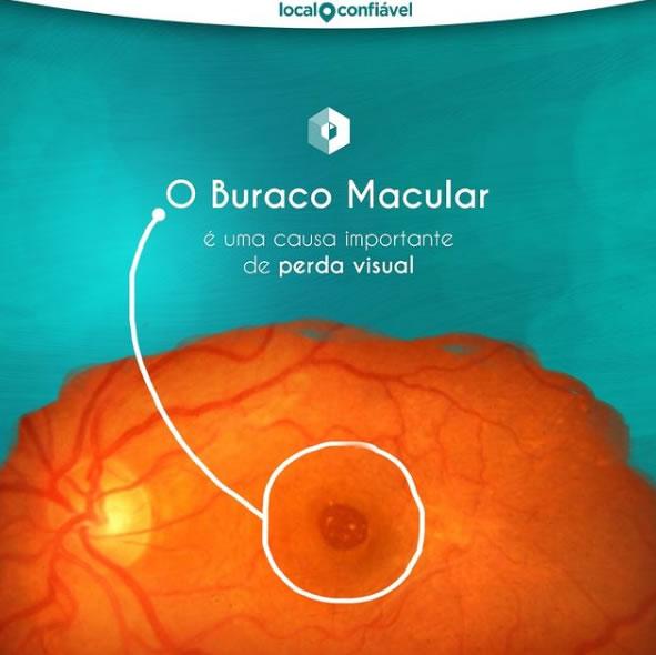 buraco macular é uma causa importante da perda visual