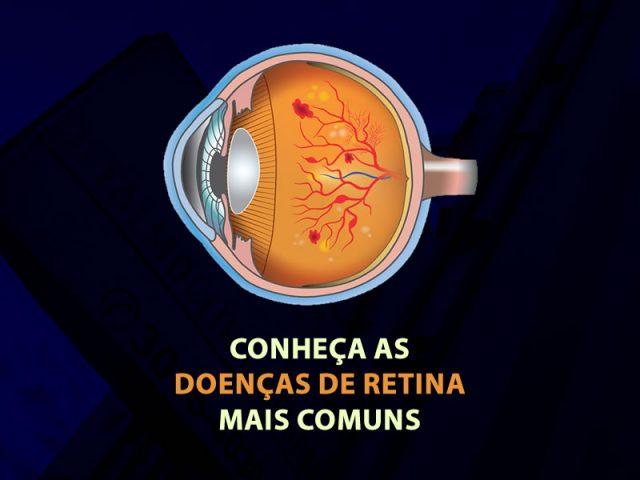 doenças de retina mais comuns