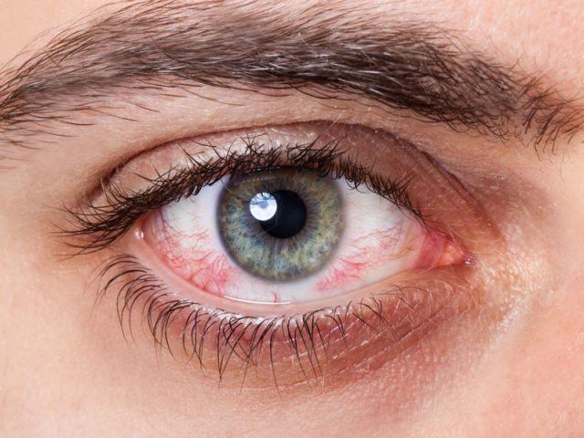 doenças raras que afetam a retina